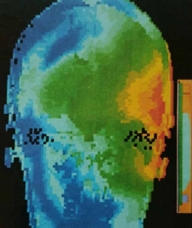 Thermal Effect of a Mobile Phone on the Brain